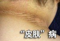 长沙皮肤瘙痒有什么常见症状