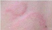 荨麻疹危害和症状