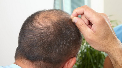 长沙治疗脱发需要多少费用