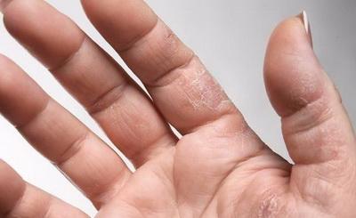 长沙得了湿疹症状有哪些
