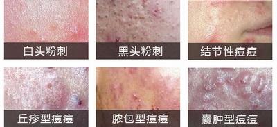 痤疮的症状特征有什么