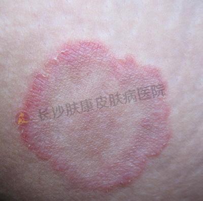 皮肤瘙痒长红斑?小心体股癣